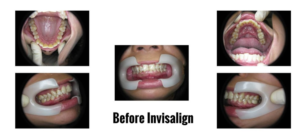 BEFORE INVISALIGN PICTURES