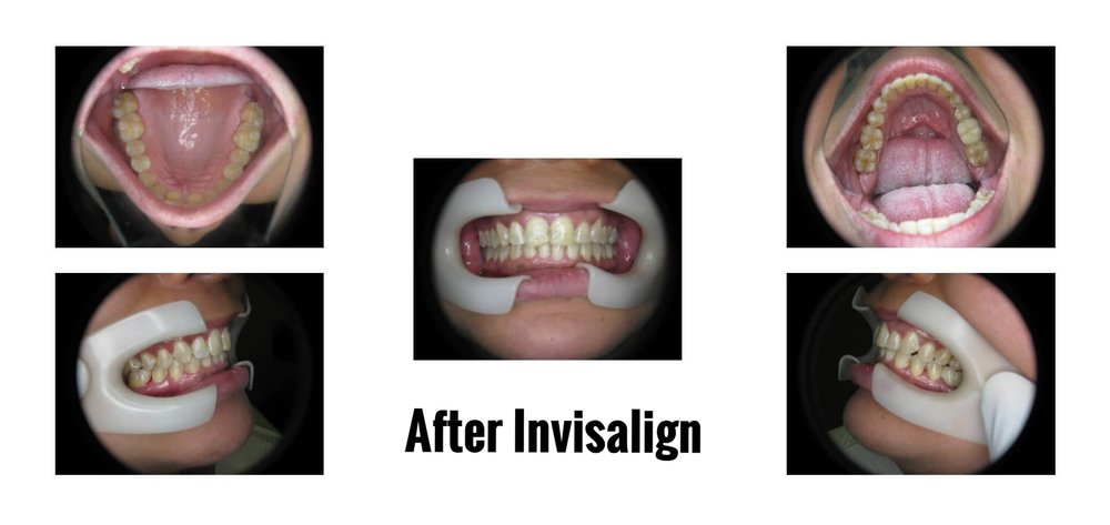 AFTER INVISALIGN PICTURES