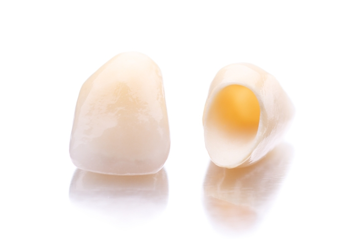 PORCELAIN CROWNS (ACTUAL PATIENTS)