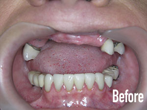 Before Implants and Bridges - Soft Touch Dental