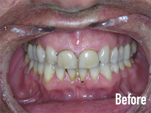 Before Crowns - Soft Touch Dental
