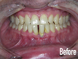 Deep cleaning, laser tissue recontouring, and veneers before 1.jpg