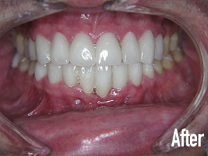 Deep cleaning, laser tissue recontouring, and veneers after 1.jpg