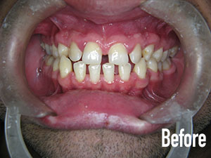 Before Upper and Lower Crowns - Soft Touch Dental