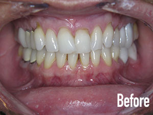 veneers and tissue recontouring before 1.jpg