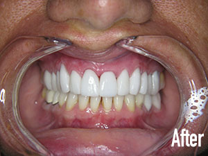 veneers and tissue recontouring after 1.jpg