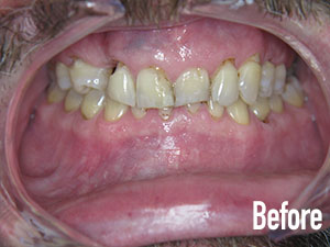 Before Crown and Bridge - Soft Touch Dental