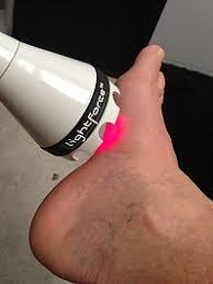 laser foot.jpg