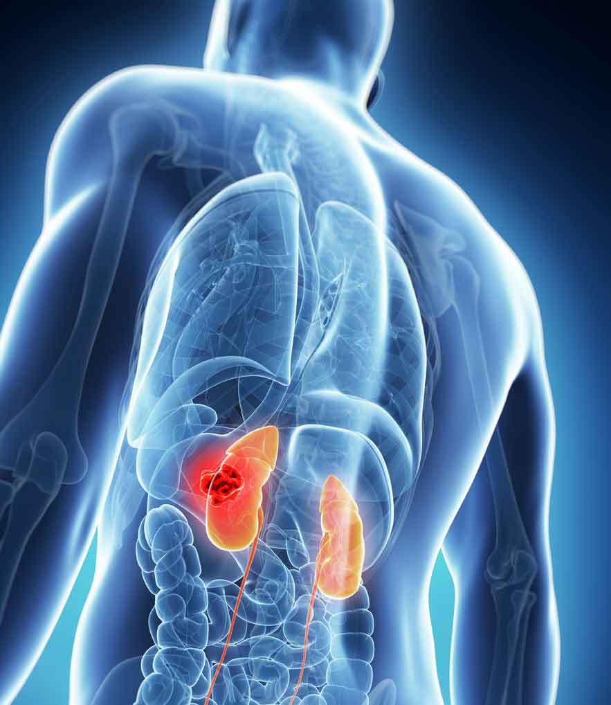 Chronic Kidney Disease Georgia Renal Associates Pc