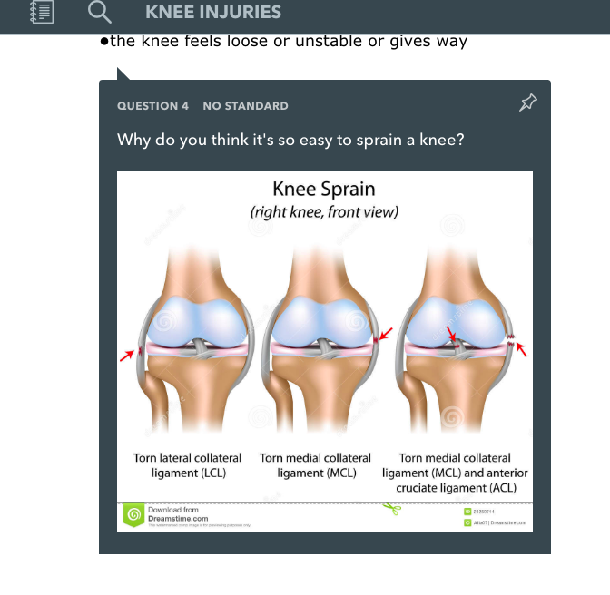 One teacher uses an article on knee injuries to deepen knowledge of anatomy.