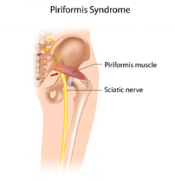 piriformis-syndrome.png
