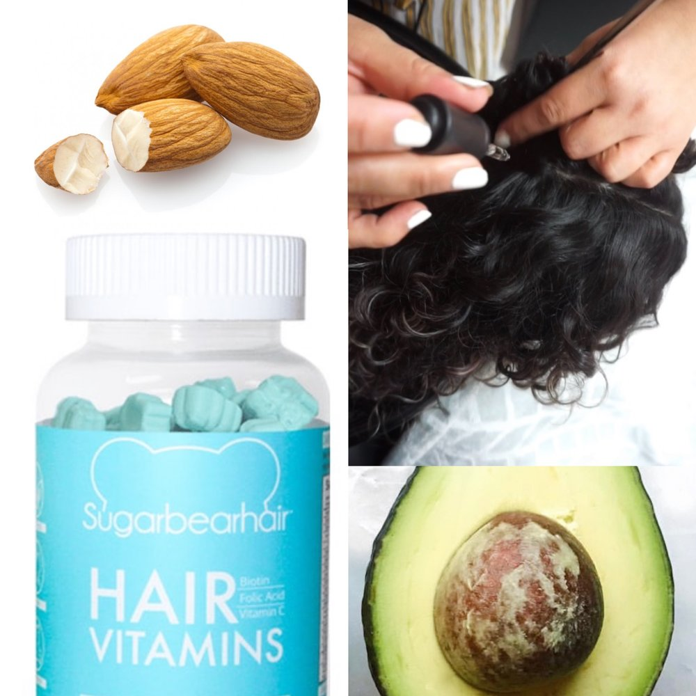 Don't stress out about Telogen Effluvium. Even though the American Association of hair loss says it's the second most common form of hair loss it can be reversed. This will require a replacement of essential nutrients either by supplements or food. FYI avocados help grow out your hair faster.