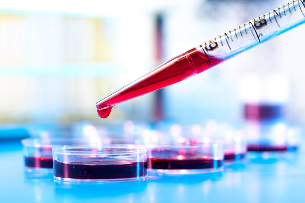 Blood tests can track a number of different markers which help indicate a tumor's growth  Photo courtesy of  www.digitaltrends.com
