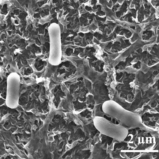 E. coli cells attached to a polyamide membrane used for water purification