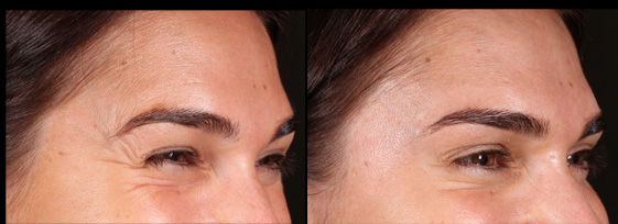 Before and after anti-wrinkle injections for crows feet. Treatment performed by Mike Clague Aeshetic nurse.    *All results shown on our website have been achieved by our team members. Please note that results are individual and may vary.