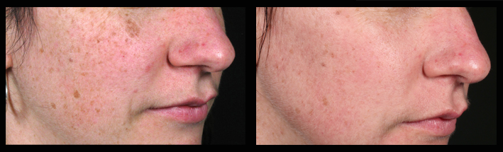 Fraxel Dual for sun spots & pigmentation