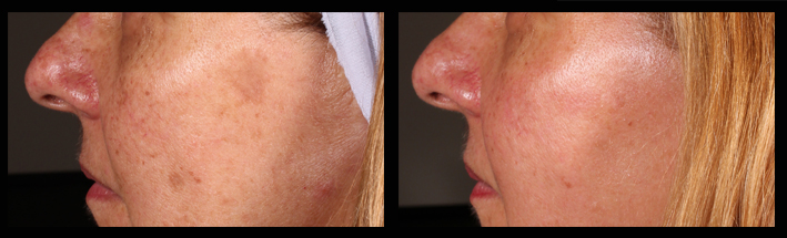 Fraxel Dual for sun spots and pigmentation