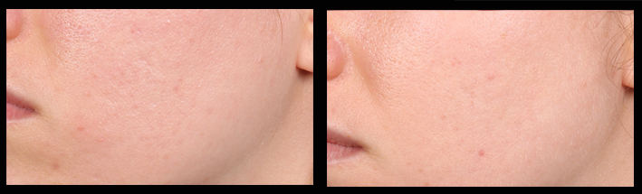 Venus Viva for mild acne scarring