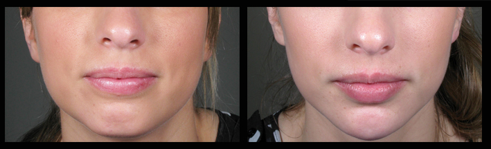 Muscle Relaxing Injections and Dermal Fillers for lower face sculpting