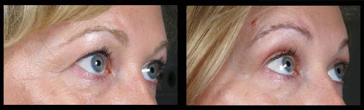 Blepharoplasty (Upper Eyelid Surgery)