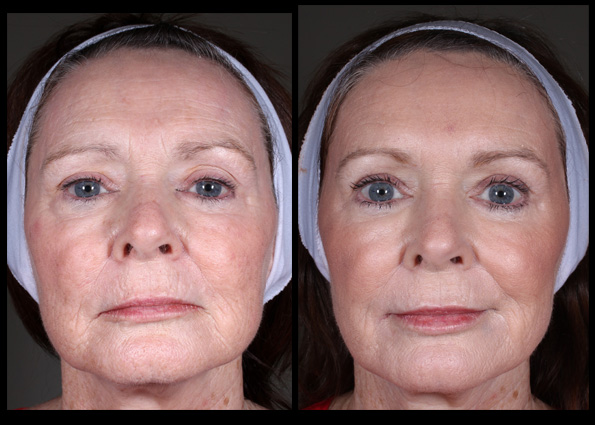 Dermal Fillers and  Muscle Relaxant Injections  for facial contouring, shaping and rejuvenation. Treatment performed by  Assoc Prof Greg Goodman *
