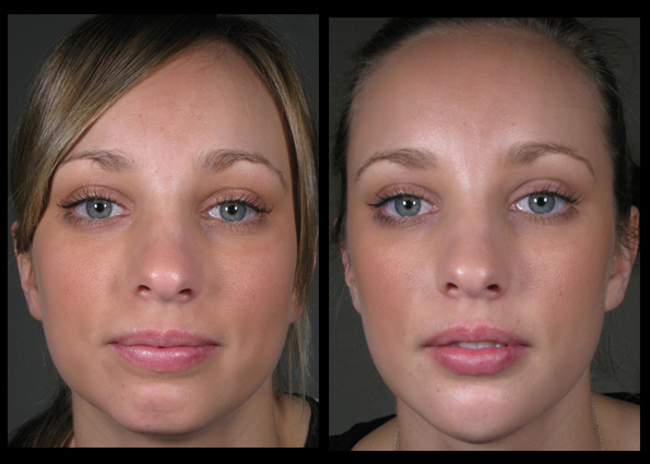 Dermal Fillers and  Muscle Relaxant Injections  for facial contouring, shaping and rejuvenation. Treatment performed by  Dr Lee Mei Yap *