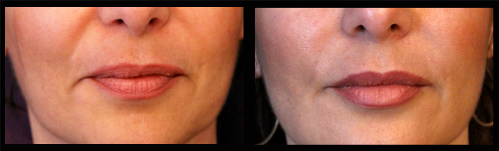 Dermal Filler for lip enhancement