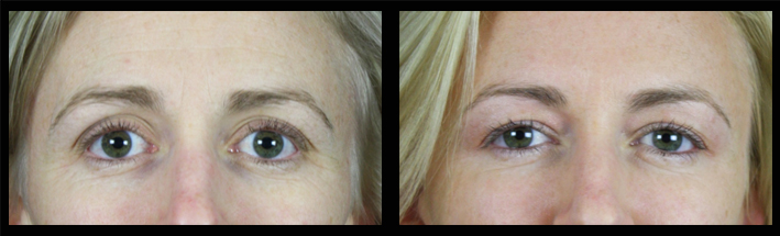 Dermal filler for eye area and forehead enhancement