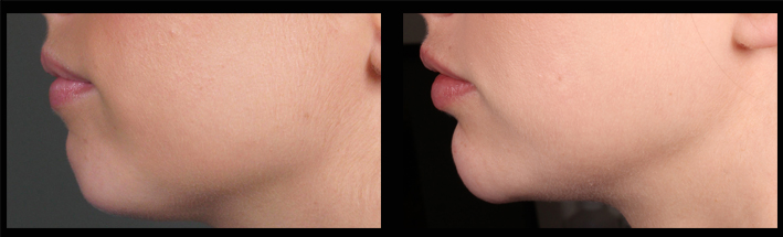 Dermal Fillers for chin enhancement