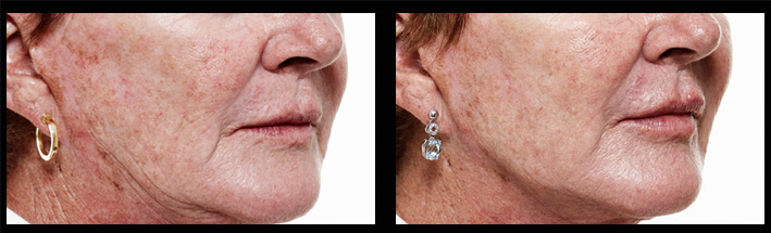 Dermal Fillers for lower face and lip enhancement