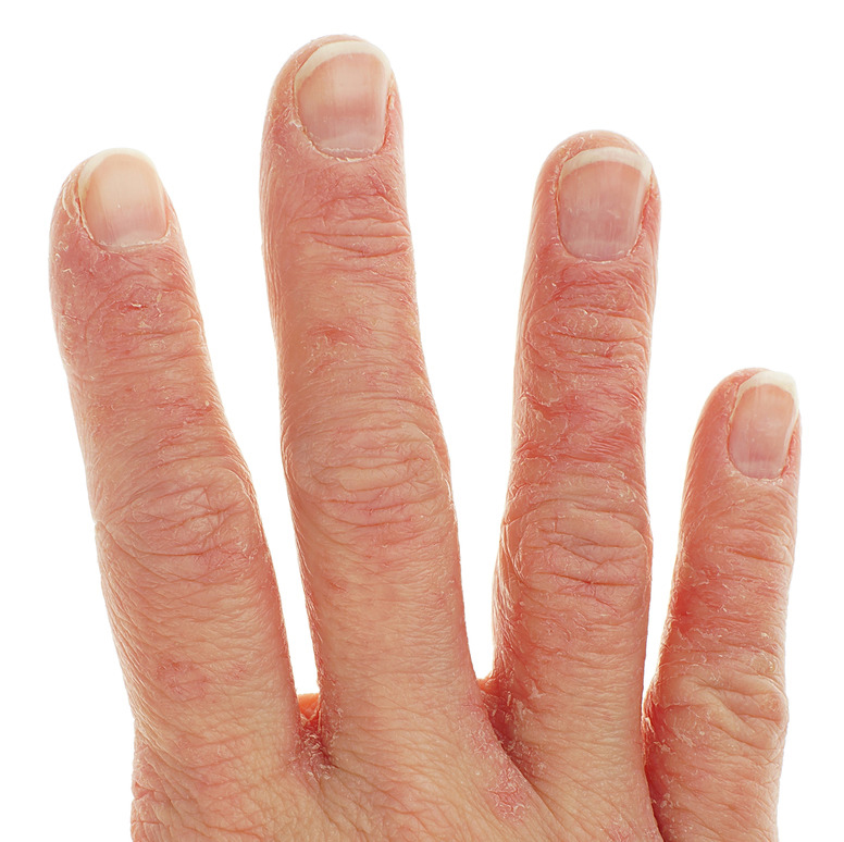 Example of contact Dermatitis