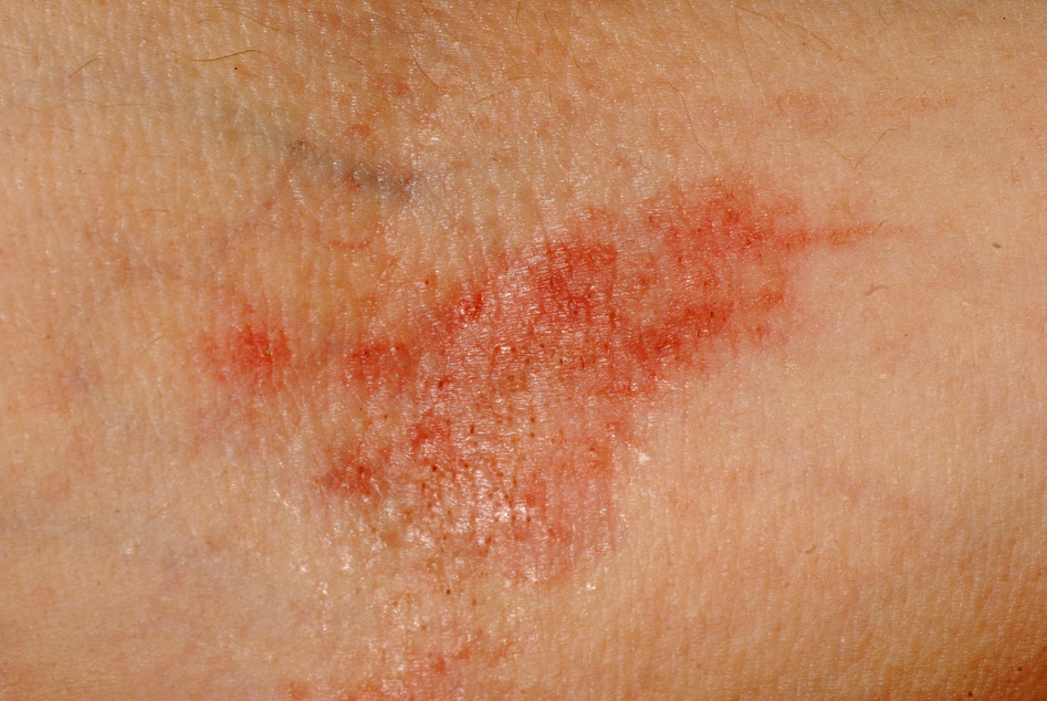 Example of Atopic eczema in the elbow crease