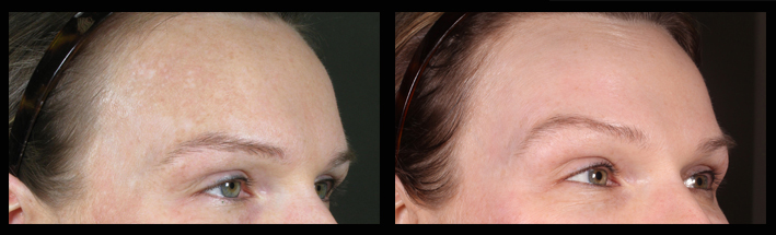 A patient who has had  Fraxel  treatments at The Dermatology Institute of Victoria to improve her  pigmentation .