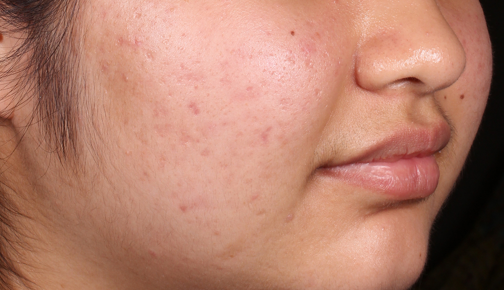 Acne scarring example