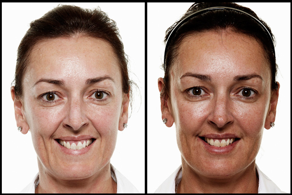 Full facial rejuventation by Dr Stefania Roberts