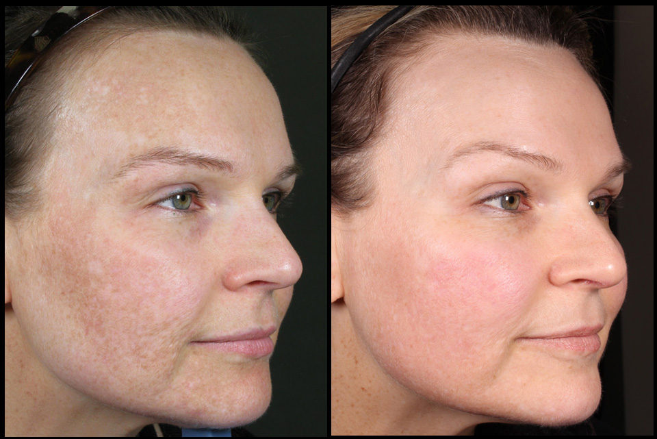 Treatment of pigmentation by Kristin Campbell (RN)