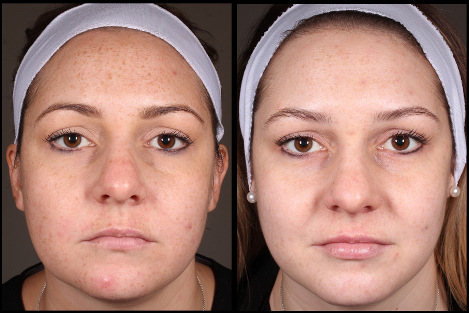 Treatment of freckles by Kristin Campbell (RN)