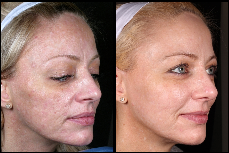 Treatment of Acne Scarring by Assoc Prof Greg Goodman, Kristin Campbell (RN), Tara Coetzer (RN)