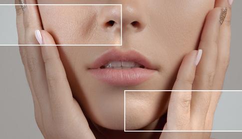 Pores example
