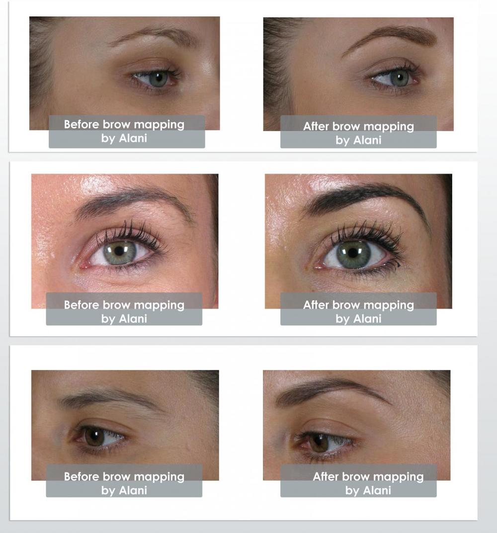 The Dermatology Institute of Victoria — Brow Mapping — The team at ...