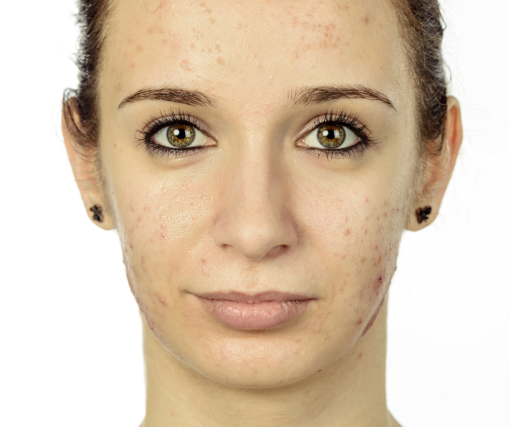 Acne sunscreen picture.jpg