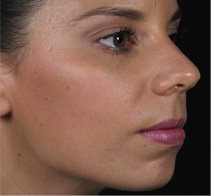 Before dermal filler treatment with Assoc. Prof. Greg Goodman