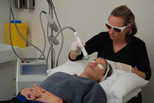 2. A Skin Rejuvenation Laser treatment
