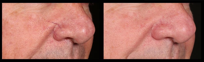 Blood vessel on the nose treated by Assoc Prof Greg Goodman with a vascular laser.