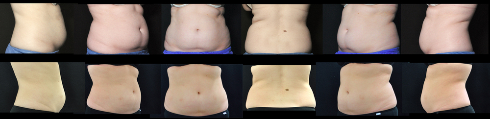 The top row shows a Dermatology Institute of Victoria patient before she had her upper and lower stomach treated with Coolsculpting. The Second row shows the same patient 4 months after her Coolsculpting treatment. The treatment was performed by Lauren Aylen.