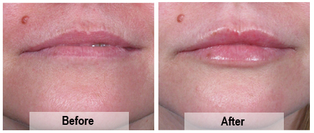 Lip enhancement performed by Assoc Prof Greg Goodman (Dermatologist)