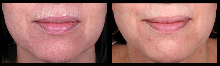 Patient before Venus Viva treatment for upper lip wrinkles and after. Treatment performed by Melissa Daniell (RN)