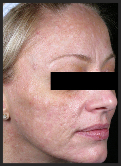 A patient with severe acne scarring