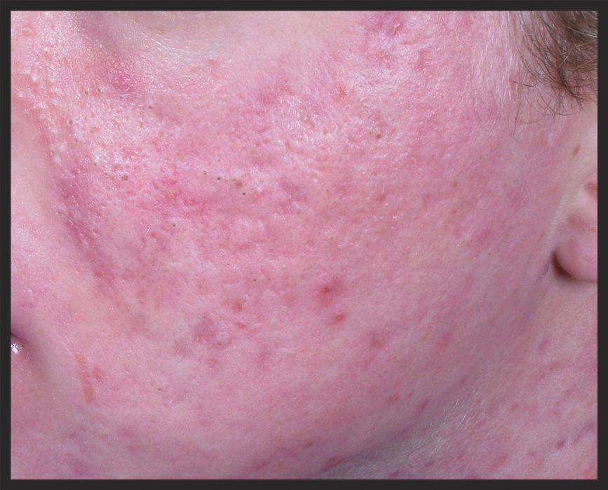 Patient with 'Severe' Grade 4 acne scarring