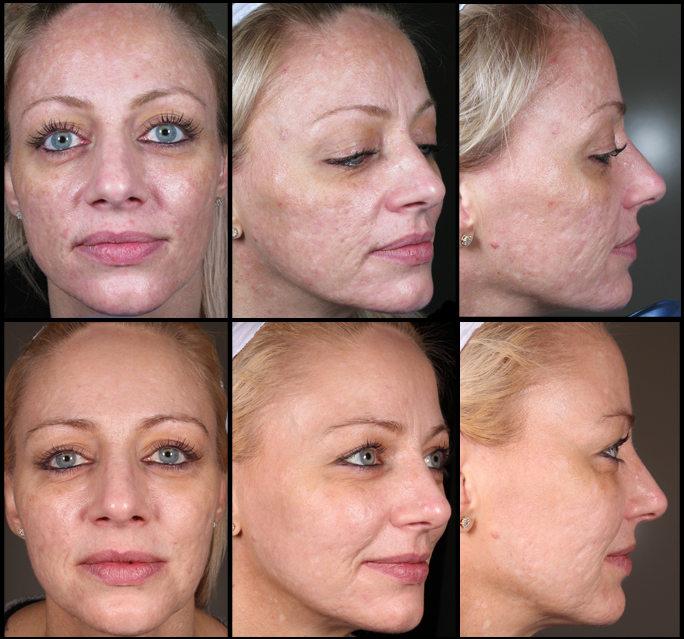 Patient who has had extensive treatment for acne scarring at The Dermatology Institute of Victoria. The top row shows before treatment, the bottom after.